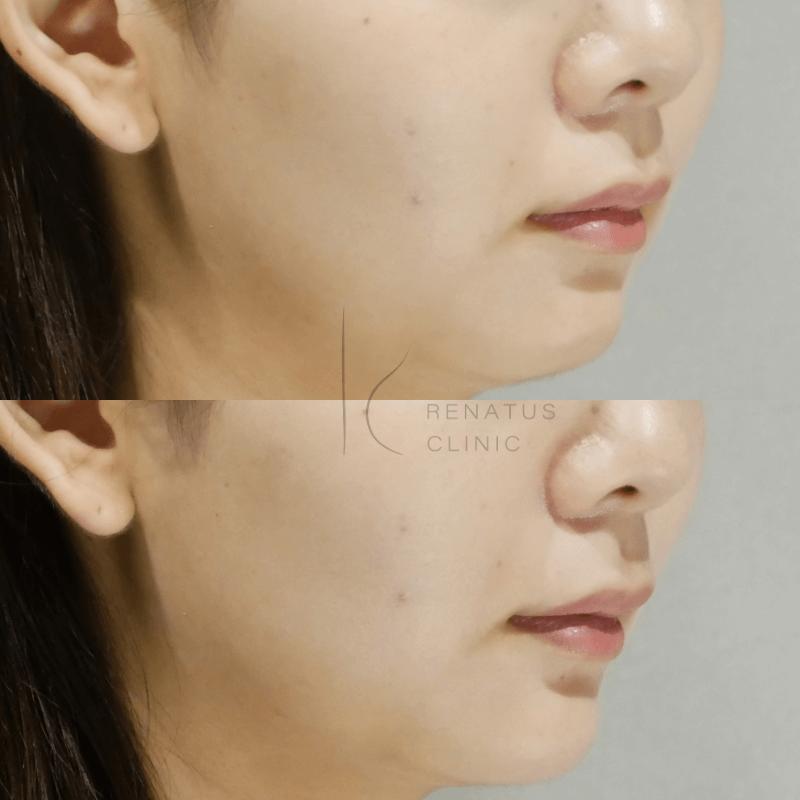 顎・ボリューマ