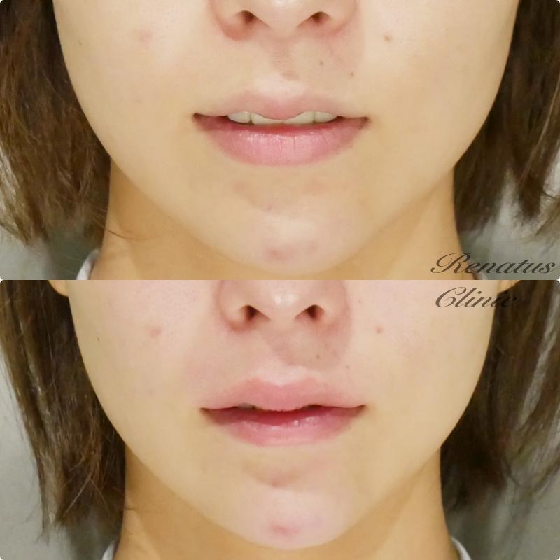上唇ボルベラ+Cカール+アゴのヒアルロン酸ボリューマ