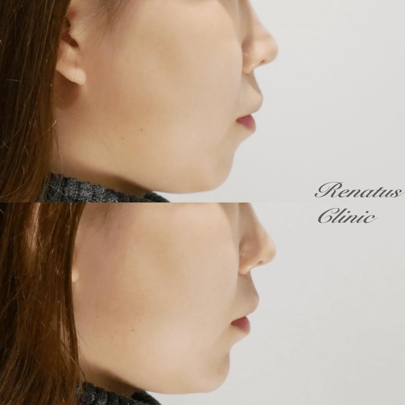 ツカモト様 顎ボリューマ (ミタDr)