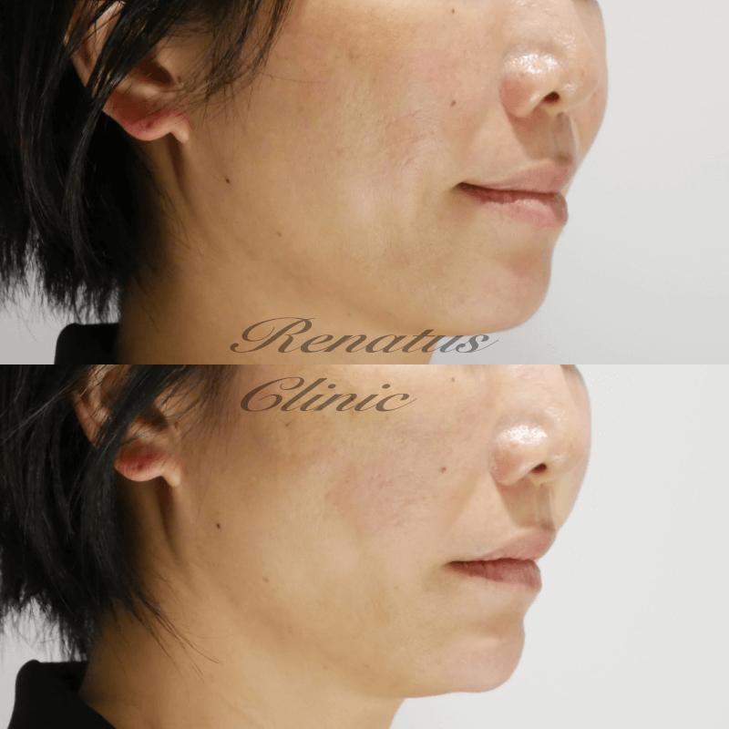 コサカモト様 リフト4(H)顎ボリューマ