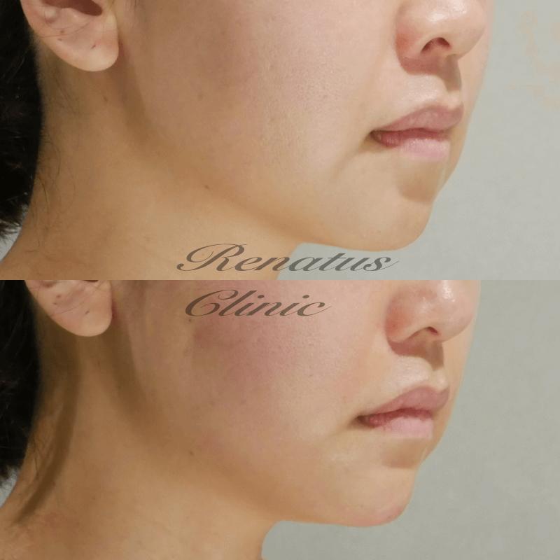 オオツキ様 リフト(2H(1H))顎 ボリューマ