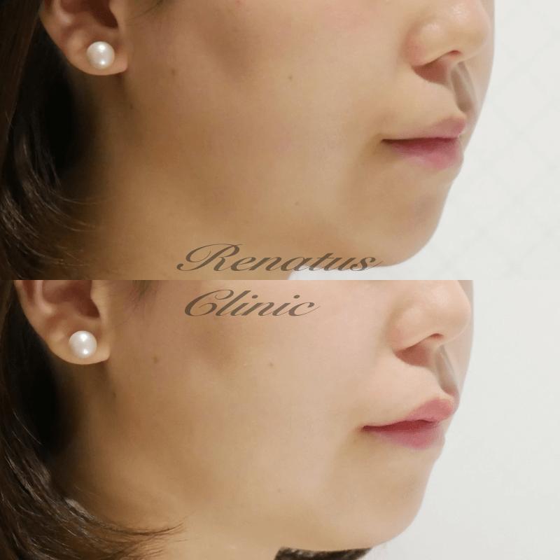 ヒワサ様 Cカール上唇 ボルベラ(ミタDR)