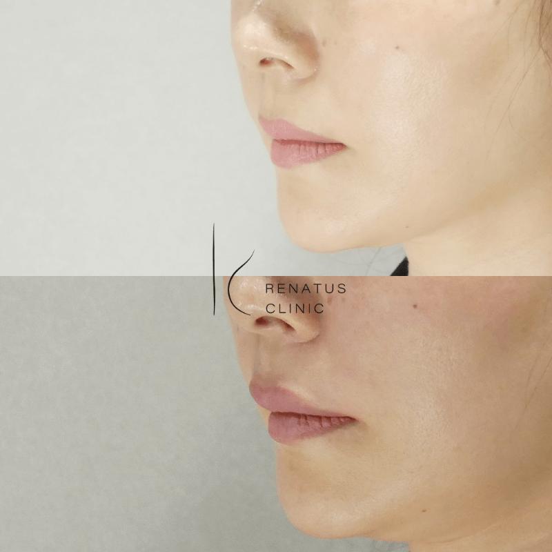 2020-04-30上唇ボルベラ2