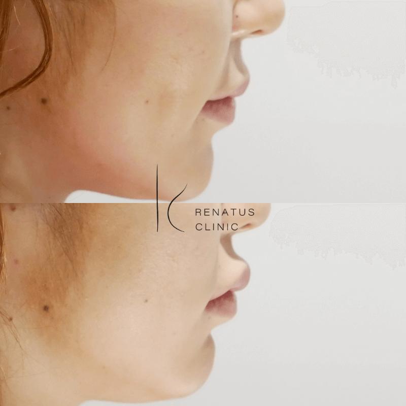2020-04-24唇3