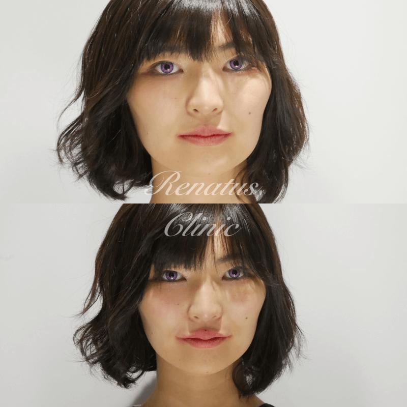 2020-04-18Cカール上唇ヒアルロン酸