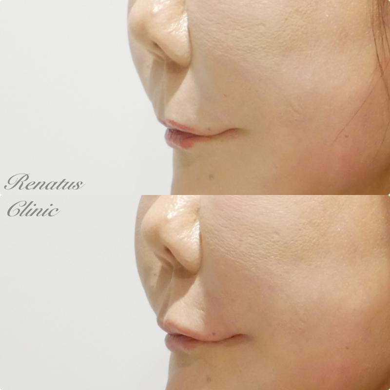 ボルベラ 上唇ヒアルロン酸