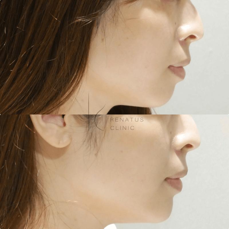 顎ボリューマ