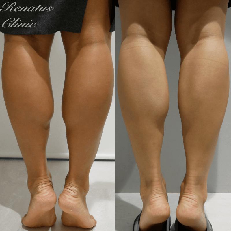 ボトックス下腿(BT)2ヶ月後