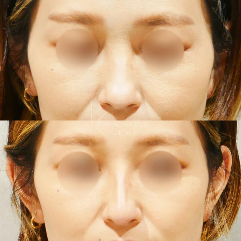 鼻ヒアルロン酸ボラックス