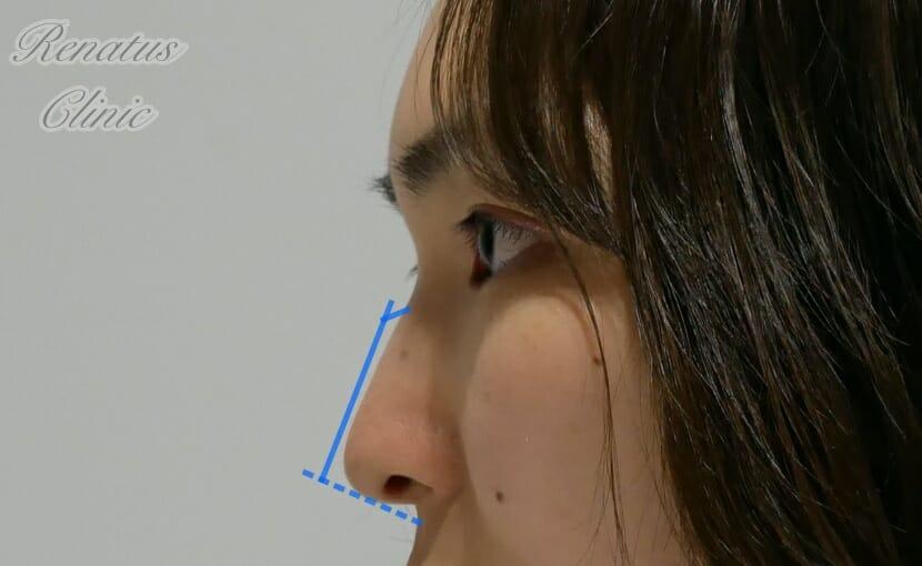 鼻筋のみ2-2