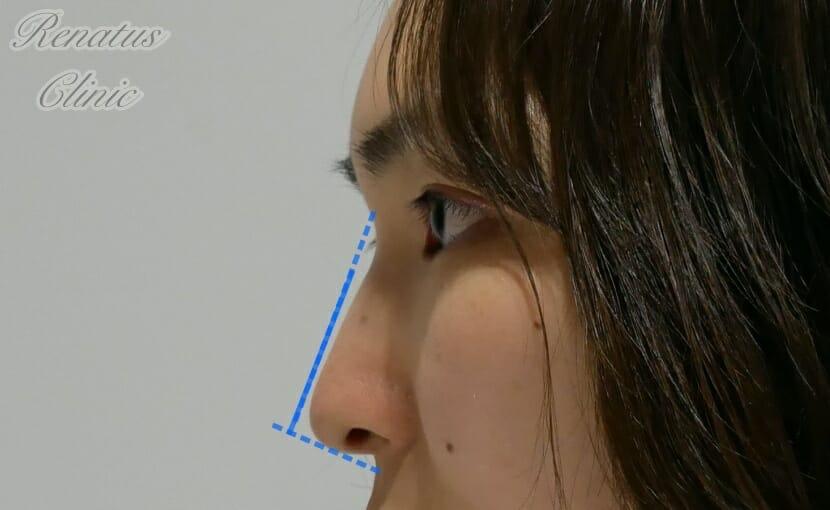 鼻筋のみ1-2