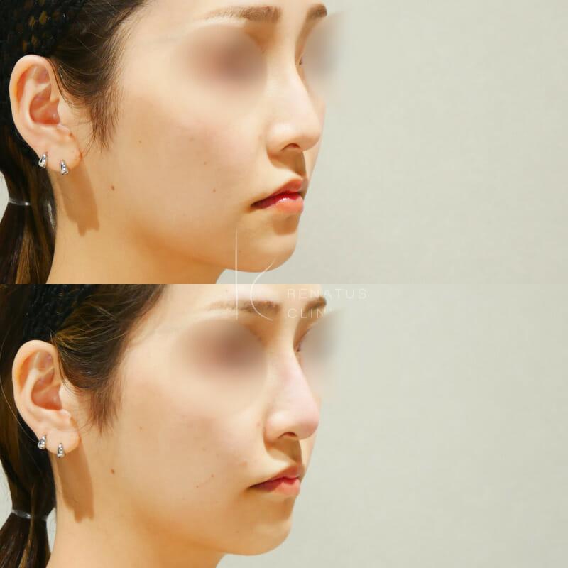 ボラックス鼻ほうれい線ボリフト