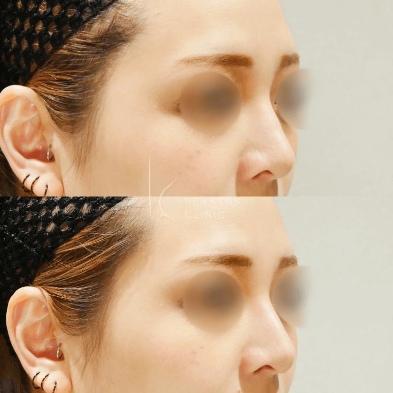 ヒアルロン酸ボラックス鼻整形