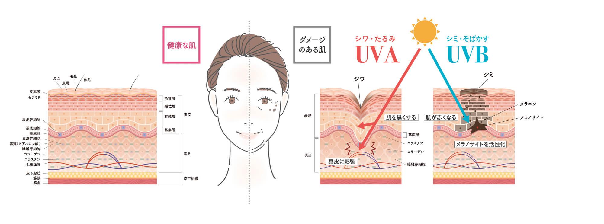 UVAUVBの影響